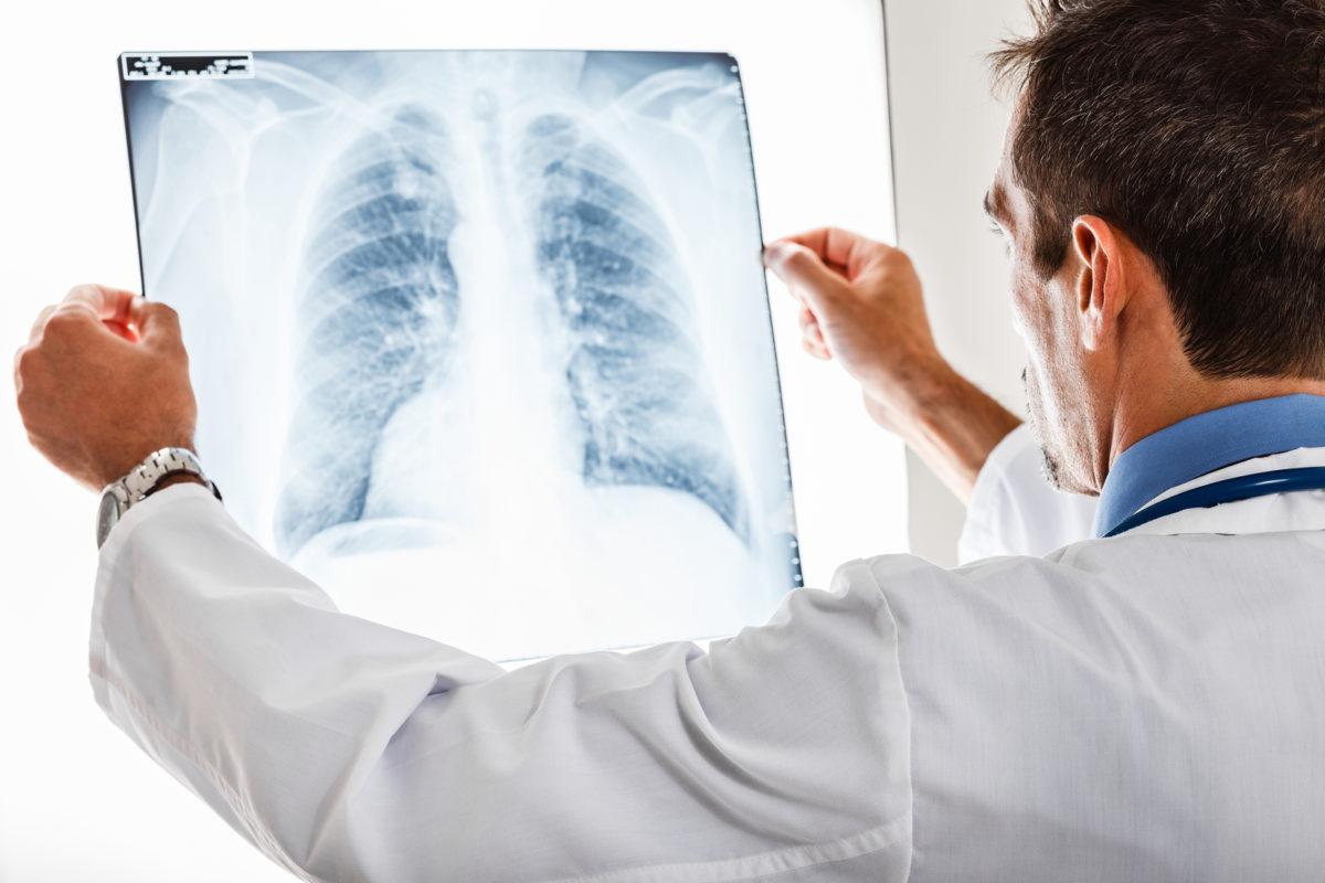 bigstock-Doctor-examining-a-lung-radiog-42099199-1200x800.jpg