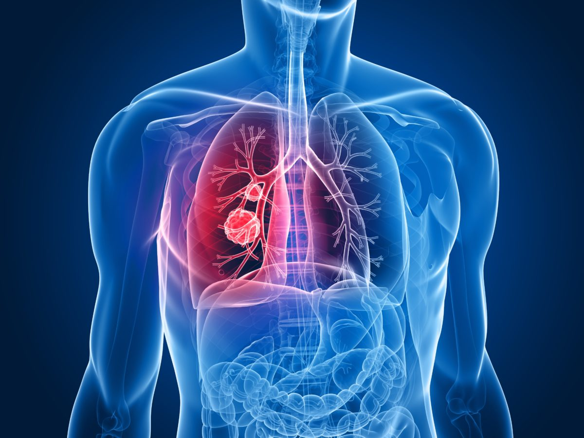 bigstock-lung-tumor-7170754-1200x900.jpg