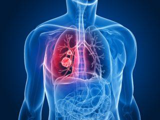 lung carcinoid tumors